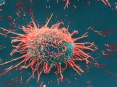 Krebszelle unter dem Elektronenmikroskop